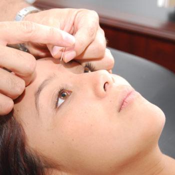 estética facial con acupuntura