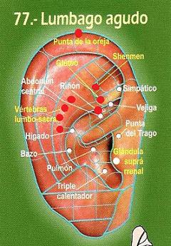 Lumbalgia-auriculo-1