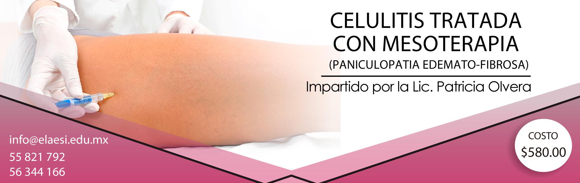 CELULITIS TRATADA CON MESOTERAPIA CDMX