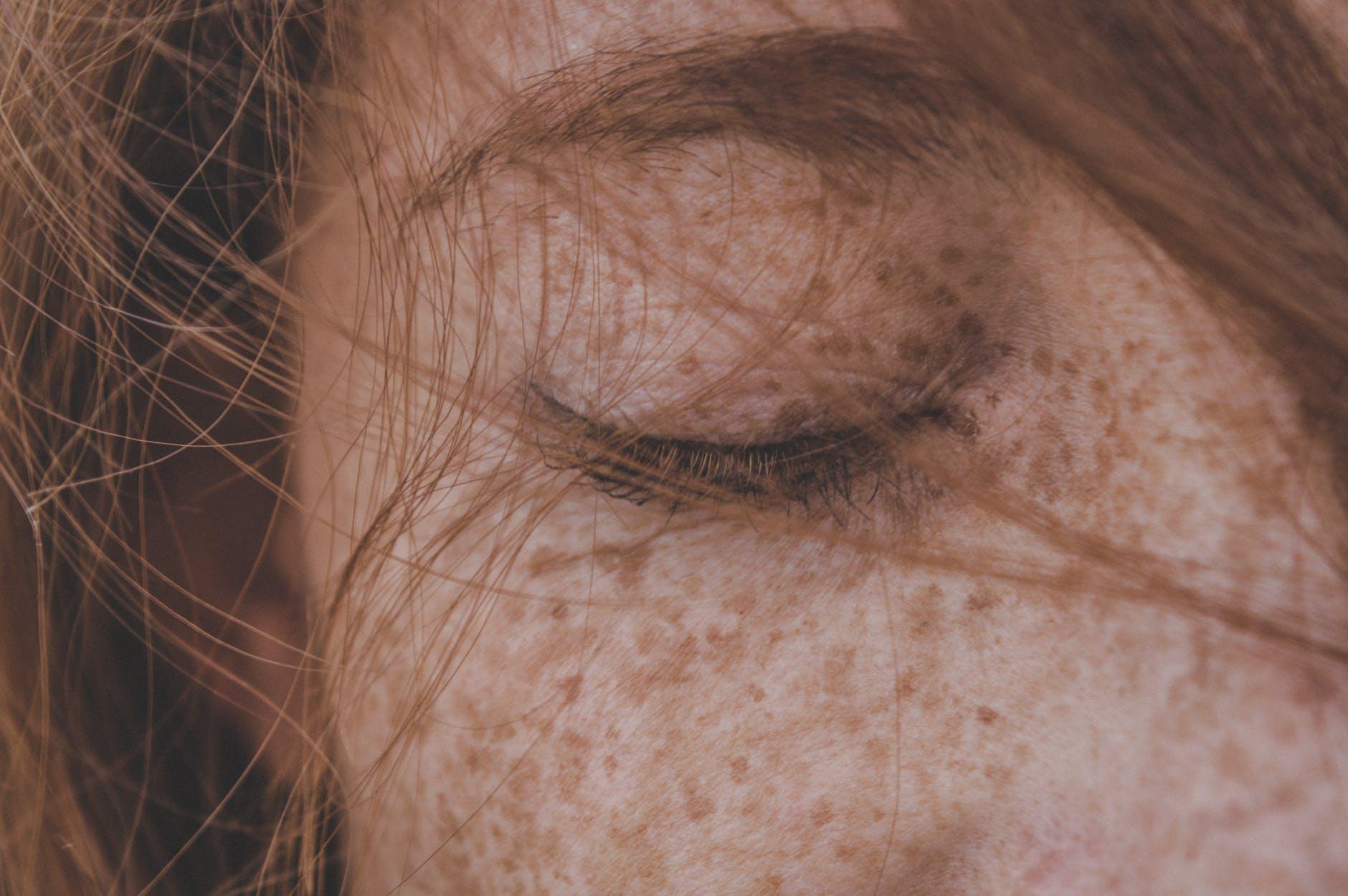 El 'Peeling' que aclara la piel