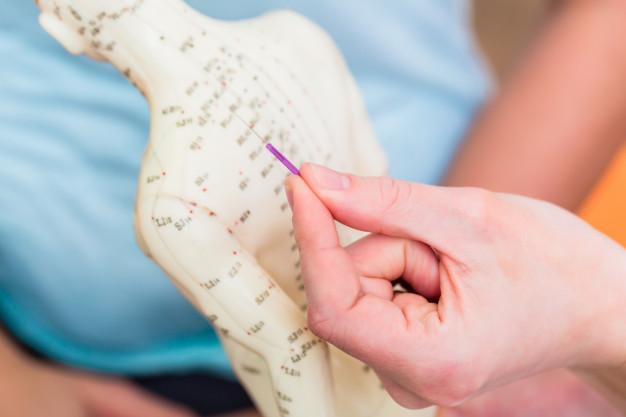 Acupuntura: Los meridianos y la energía corporal