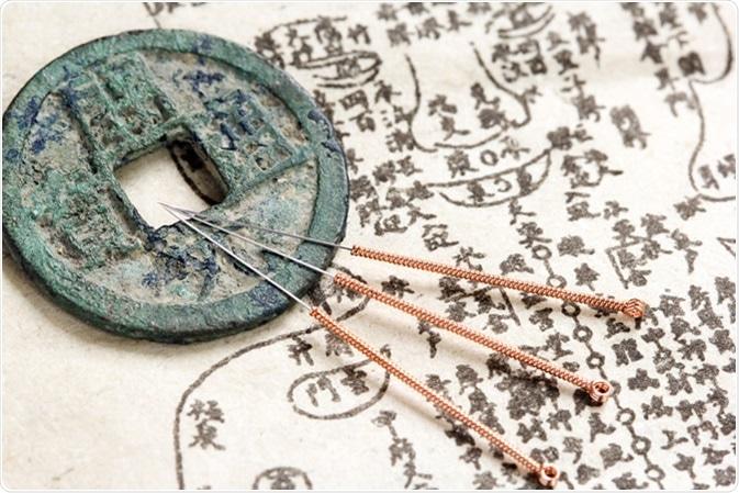 Los diferentes tipos de acupuntura que existen