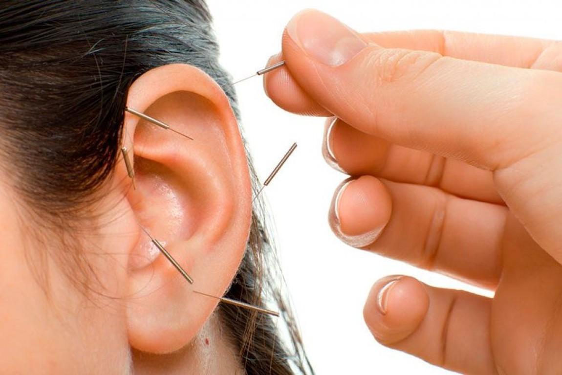 Auriculoterapia: El mapa auricular y los beneficios de la terapia